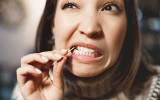 Диагноз по зубам. Какие патологии указывают на проблемы в организме