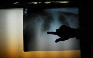 Как распознать пневмонию ипочему фастфуд советуют есть теплым? Главное оздоровье занеделю